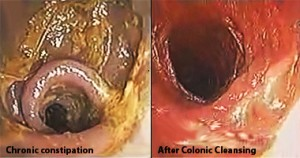Chronic colo after colonic cleansing